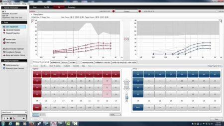Hearing Aid Programming Software GUI